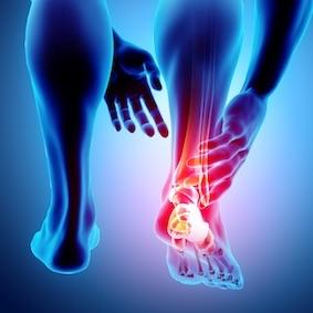 FysioCity fysiotherapie Amsterdam | Achillespeesklachten