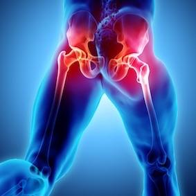 FysioCity fysiotherapie Amsterdam | Artrose