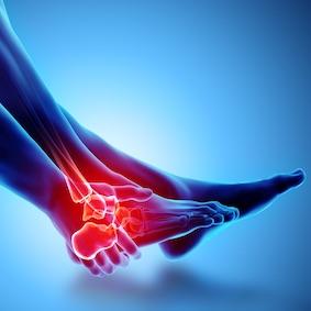 FysioCity fysiotherapie Amsterdam | Enkelklachten