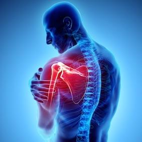 FysioCity fysiotherapie Amsterdam | Frozen Shoulder