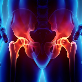 FysioCity fysiotherapie Amsterdam | Osteoporose