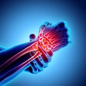 FysioCity fysiotherapie Amsterdam | Reuma