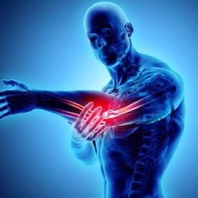 FysioCity fysiotherapie Amsterdam | Elleboogklachten
