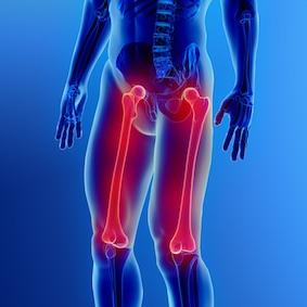 FysioCity fysiotherapie amsterdam | Hamstringklachten